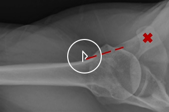 Humeral Preparation in Anatomic Total Shoulder Arthroplasty